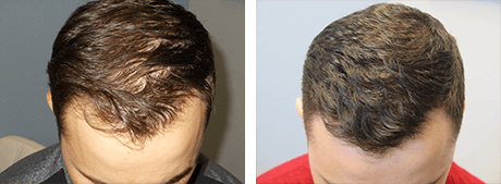 Before and After PRP Scalp Injections